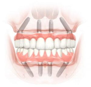 All-On-4 protézis_ ez egy 4 implantátummal csavarral rögzülő fix fogsor