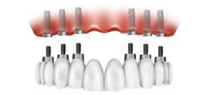 6 implantátum és fix porcelán körhíd